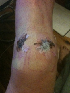 ACL Knee Post Surgery